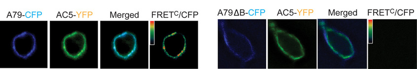 Example of images from a FRET experiment showing interaction between adenylyl cyclase and AKAP79